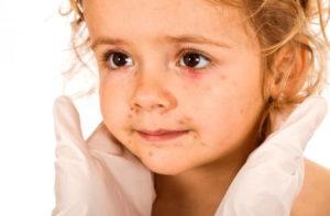 Ланолин может вызвать аллергию