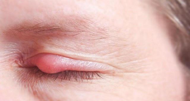 Лечение Левомеколем ячменя и конъюнктивита