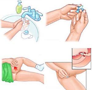 Инструкция по введению тампона в анальное отверстие при геморрое