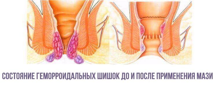 Состояние геморроидальных узлов до и после применения мази