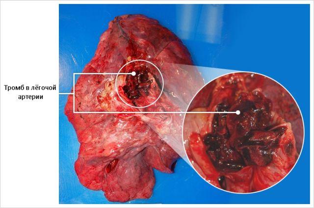 Кровяной сгусток в артерии
