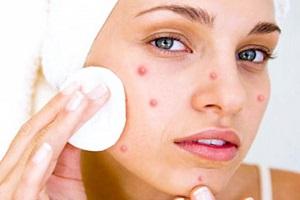 Гнойные воспаления и открытые раны на лице девушки