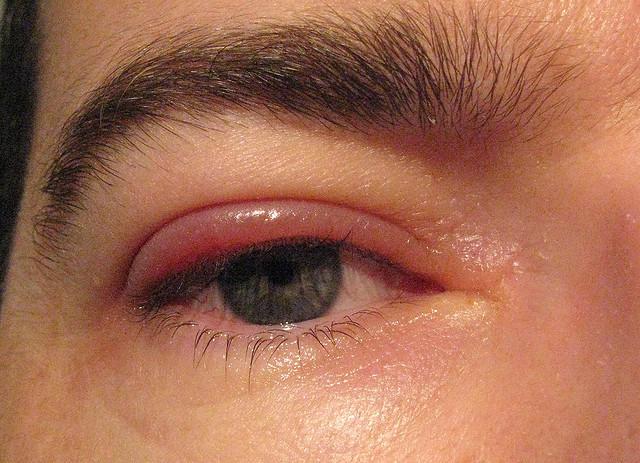 Оксолиновая мазь от дерматологических, офтальмологических, ЛОР заболеваний