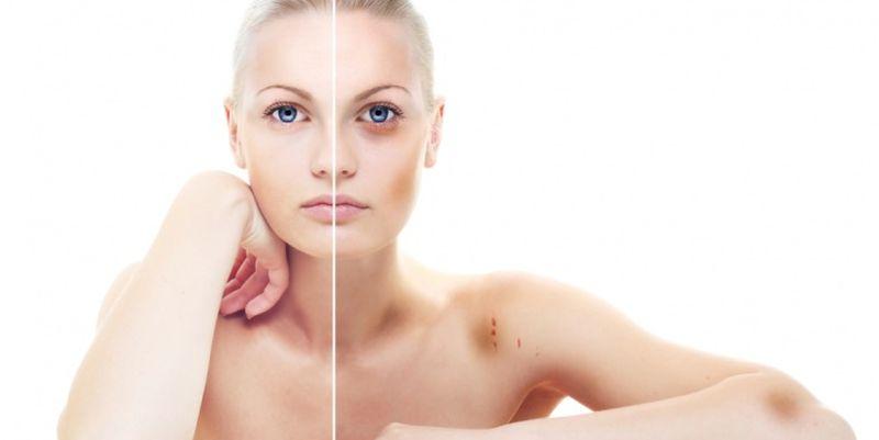 При передозировке гепариновой мази возможны побочные эффекты
