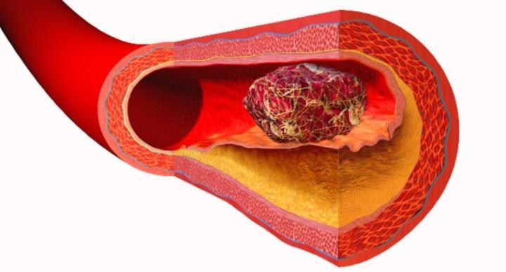 Гепариновая мазь от тромбообразоваия