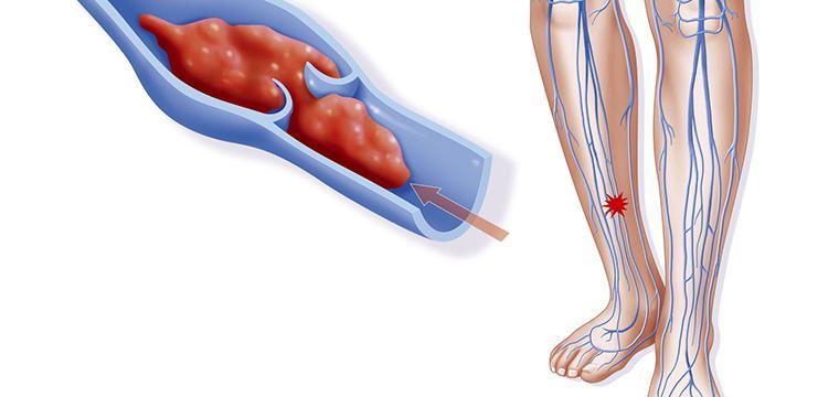 Гепариновая мазь помогает от тромбофлебит