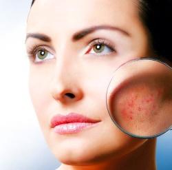Открытые раны на лице женщины