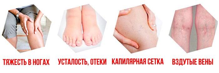 Варикоз и тромбы в ногах