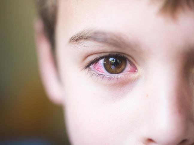 Оксолиновая мазь для лечения глазных болезней у детей