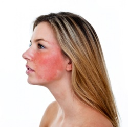 Левомеколь может спровоцировать аллергическую реакцию - гиперемию