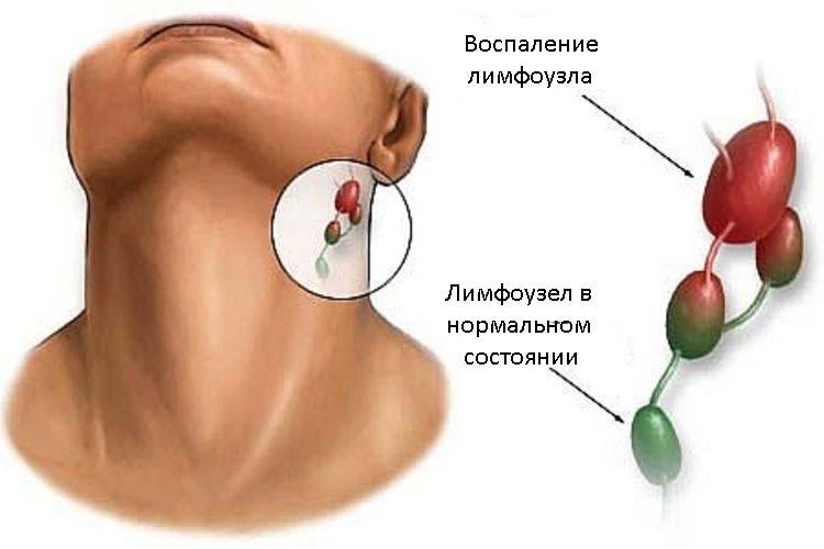 мазь левомеколь эффективна при воспалении лимфоузлов