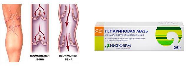 С помощью гепариновой мази избавляются от тромбозов