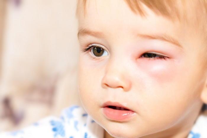 Мазь лечит инфекционные болезни кожи