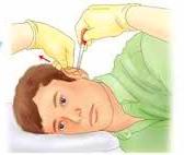 Мужчине, больному отитом, вводят лекарство в ушной канал
