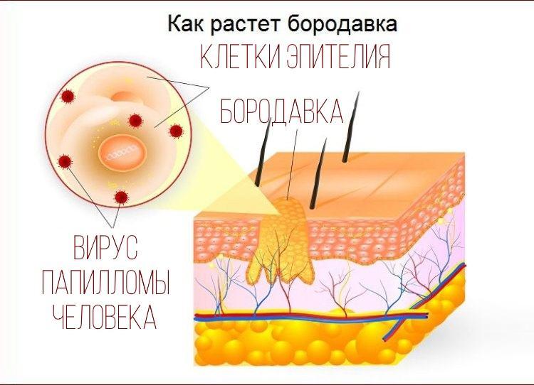 Оксолин не позволяет вирусу папилломы распространяться на здоровые клетки