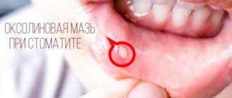 Оксолиновая мазь эффективно борется со стоматитом