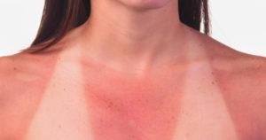 Ожоги возникают из-за длительно нахождения под солнечными лучами