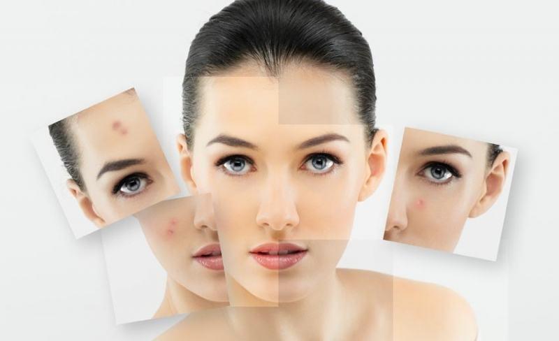 Гепариновая мазь борется с косметическими дефектами