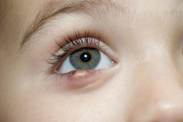 Левомеколь можно применять для лечения ячменя у ребенка