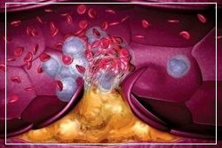 Мазь релиф противопоказана при венозной гиперемии