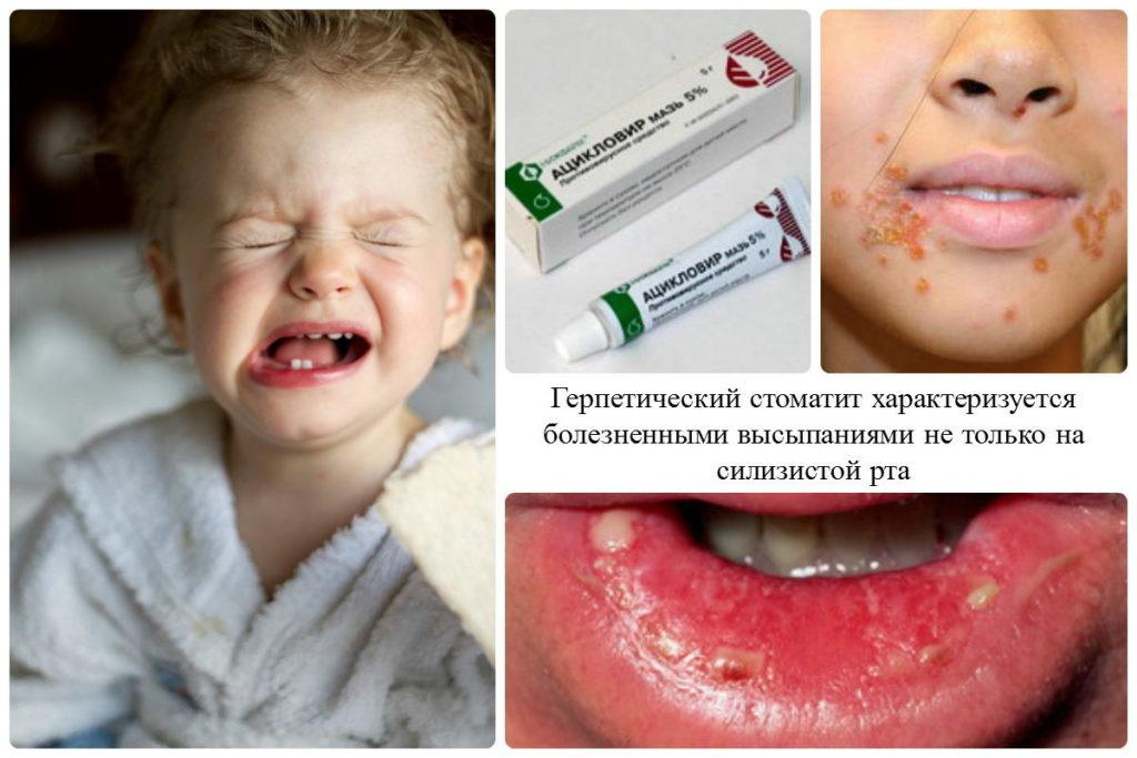 Ацикловир используют для лечения герпетического стоматита