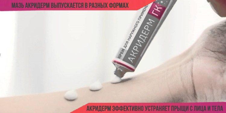 Акридерм помогает устранить прыщи с лица и тела
