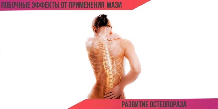 Акридерм может спровоцировать развитие остеопороза