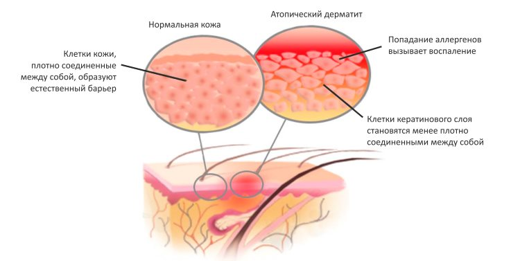 Сравнение здоровой кожи и пораженной атопическим дерматитом