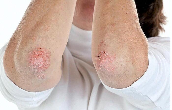 Псориаз - хроническое кожное заболевание