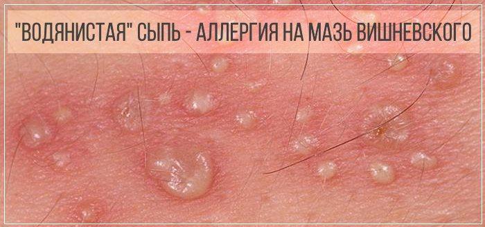 Аллергическая сыпь на коже