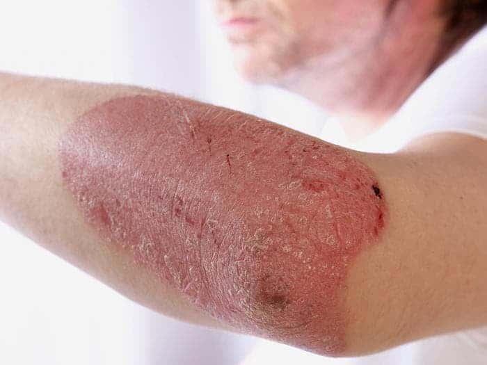 Показания к применению лекарства - кожные поражения