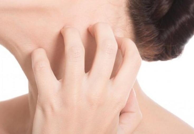 Кожный зуд - аллергическая реакция на препарат