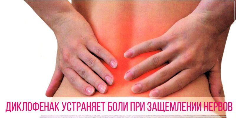 Диклофенак устраняет боли при защемлении нервов