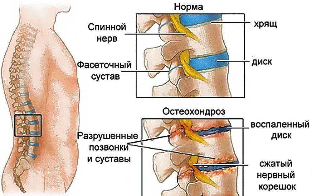 Препарат снижает болевой синдром