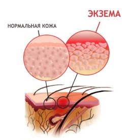 Мазь тридерм способствует устранению экземы, хронических лишаев