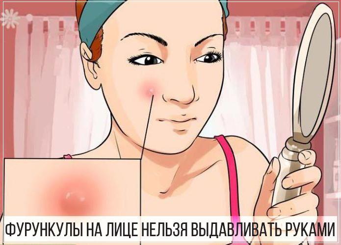 Фурункулы на лице девушки