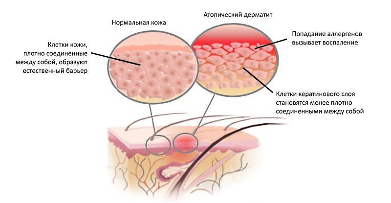 Мазь для лечения атопического дерматита