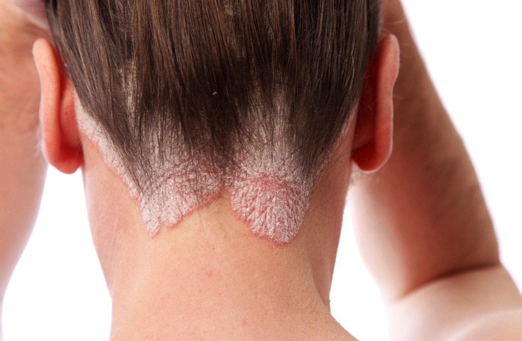 Препарат применяют в терапии псориаза