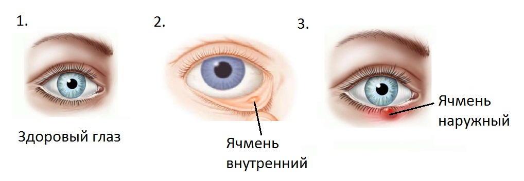 Препарат наносят на область воспаления
