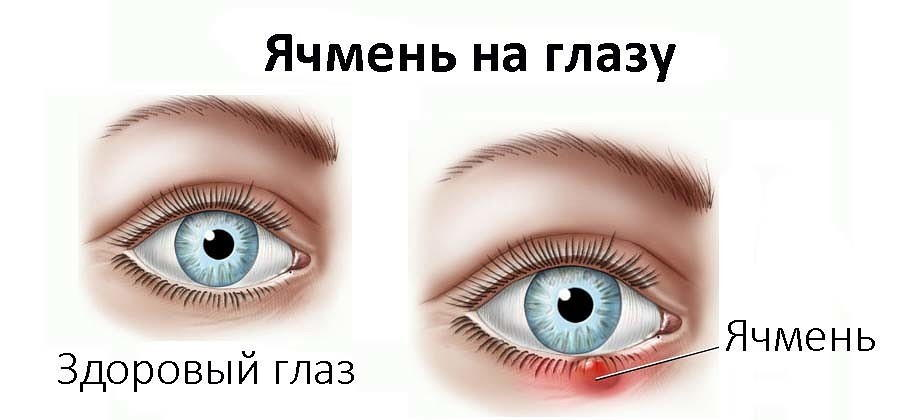 Гидрокортизоновая мазь при ячмене на глазу: эффективность ...