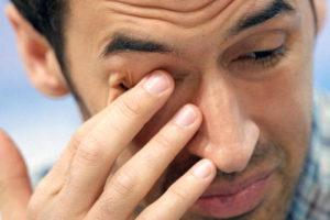 Слезоточивость и жжение - побочное действие препарата