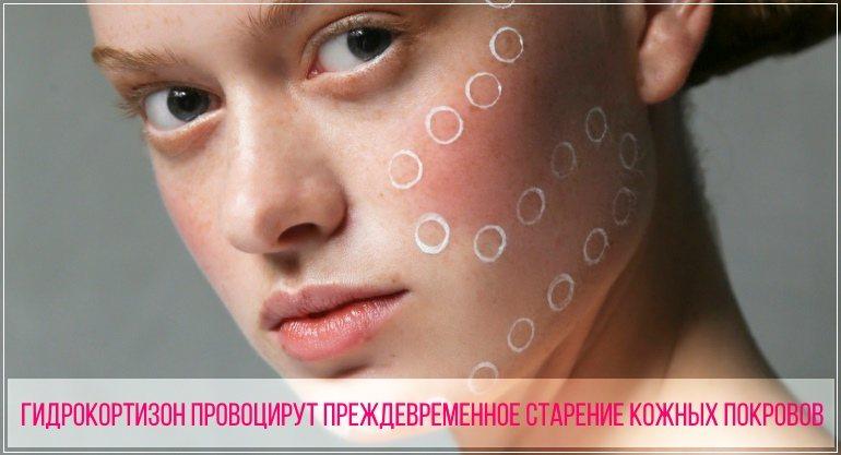 Гидрокортизоновая мазь может спровоцировать преждевременное старение кожи