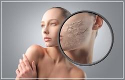 При передозировке гидрокортизона может возникнуть иссушение кожи