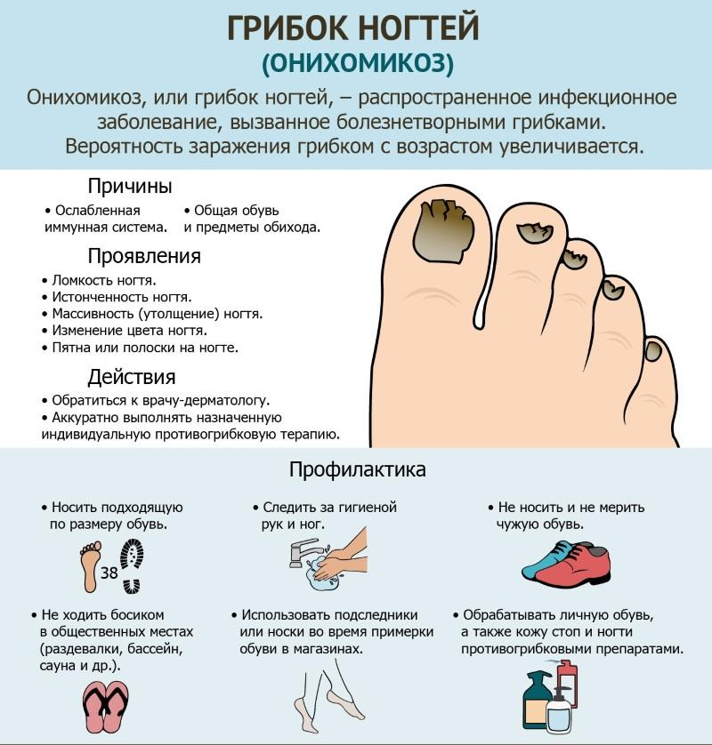 Онихомикоз - поражение ногтей грибком