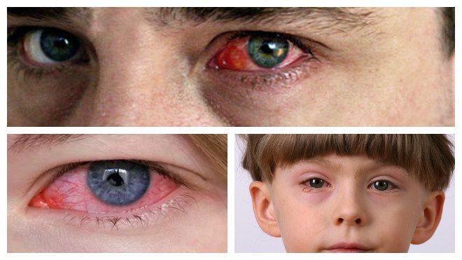 Глаза у взрослых и детей при аллергическом конъюнктивите