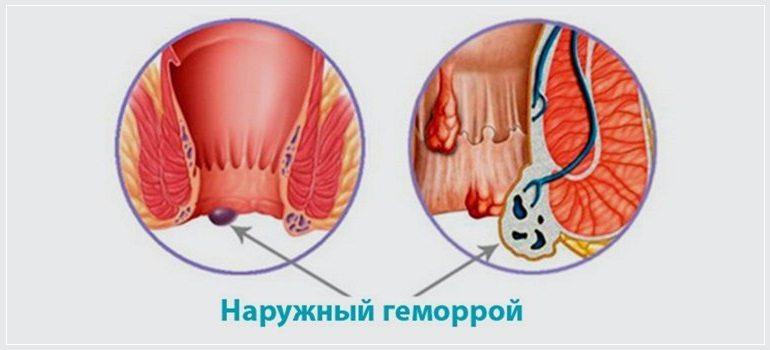Как лечить геморрой мазью Вишневского