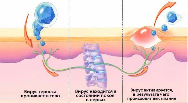 Герпес атакует здоровые клетки