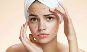 Препарат назначают при воспалительных заболеваниях кожи