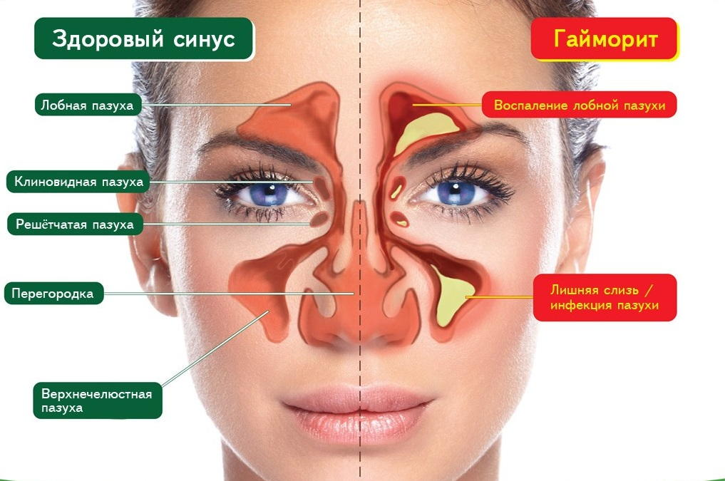 Мазь используют в терапии хронического гайморита