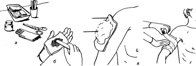 Повязка с метилурацилом на руку
